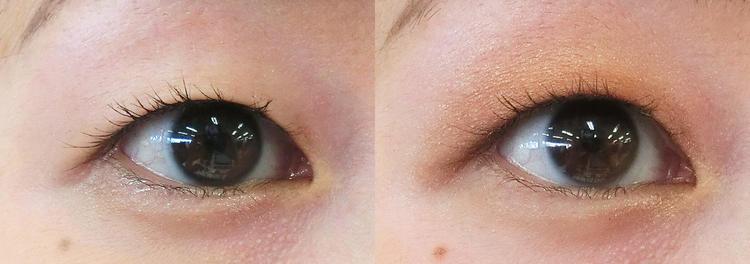 目 の 腫れ を とる 方法